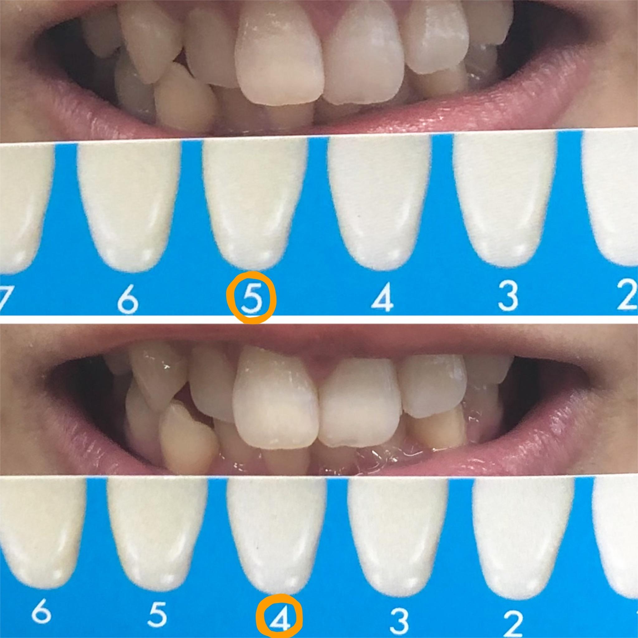 さよなら黄色い歯!!簡単ホームホワイトニングに関する画像15