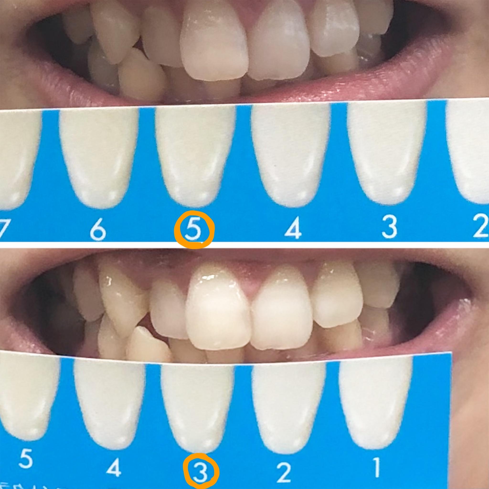 さよなら黄色い歯!!簡単ホームホワイトニングに関する画像19
