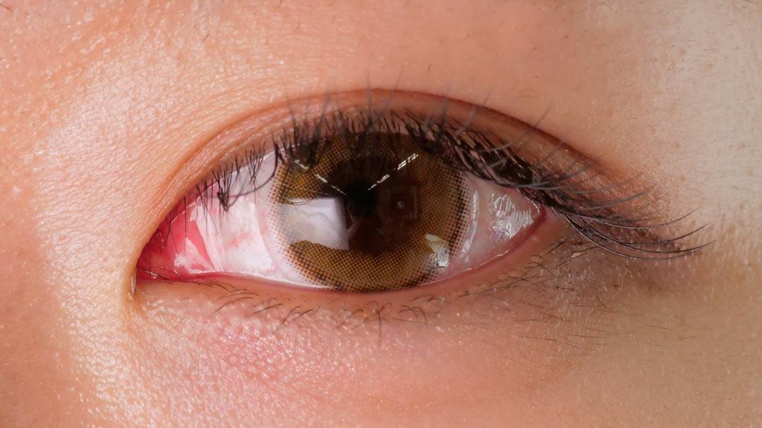 メランジェ シュエット モイストインワンデー 橋本環奈のような瞳になれると話題のカラコン!に関する画像6