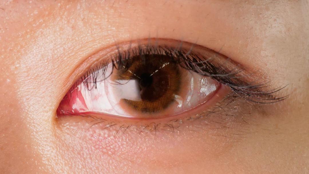 メランジェ シュエット モイストインワンデー 橋本環奈のような瞳になれると話題のカラコン!に関する画像11