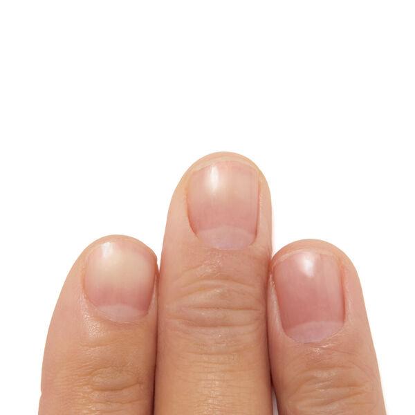 ささくれの原因やケア方法、治し方って? 正しいケアでいつでも美しい指先を♡【医療監修】の画像